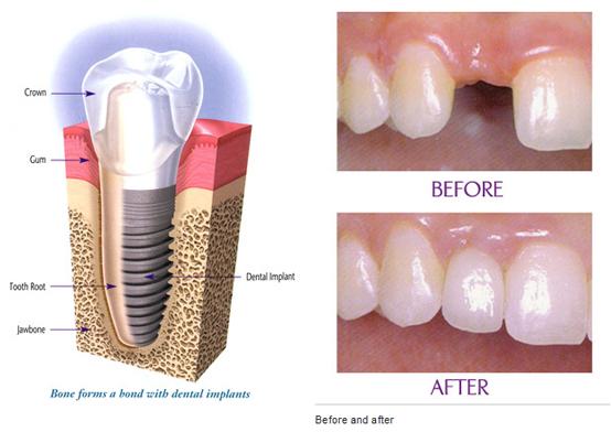 fixed-implant